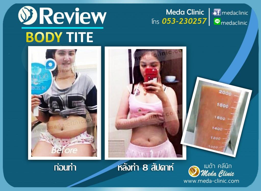 รีวิล BODY TITE 2 copy (2)